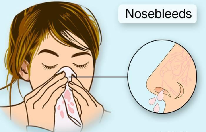 prevent of nosebleed